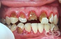 гниещ зъб