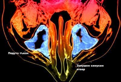 Възпаление на синусите