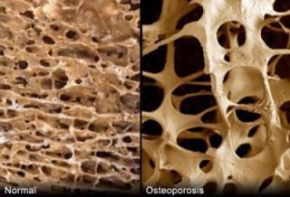 Разреждане на костните гредички