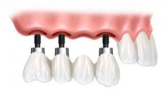зъбен имплантат от aba-implant.bg